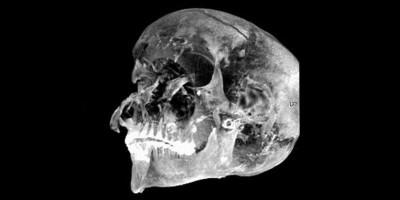 Peneliti Ungkap Penyebab Kematian Tragis Raja Seqenenre Taa II